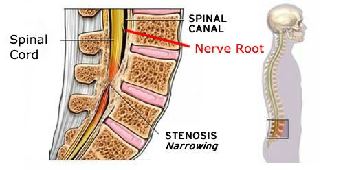 Spinal Stenosis showing spinal Canal| Dr Ken Nakamura Downtown Toronto Chiropractor