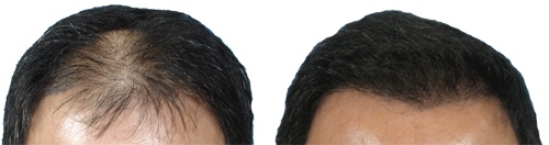 What-actually-happens-in-a-FUE-Hair-Transplant-Procedure