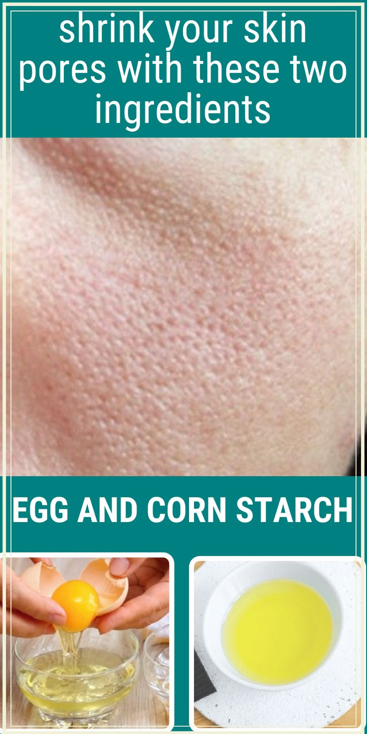 Egg White And Corn Starch Mask Remedy To Shrink Large Pores
