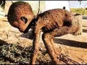 Résultats de la recherche d'images starving children in africa - Yahoo Québec