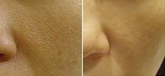 Derma Roller Before And After Picture. Gunna give this a try. I have huge pores and of course acne so this will definitely help out.