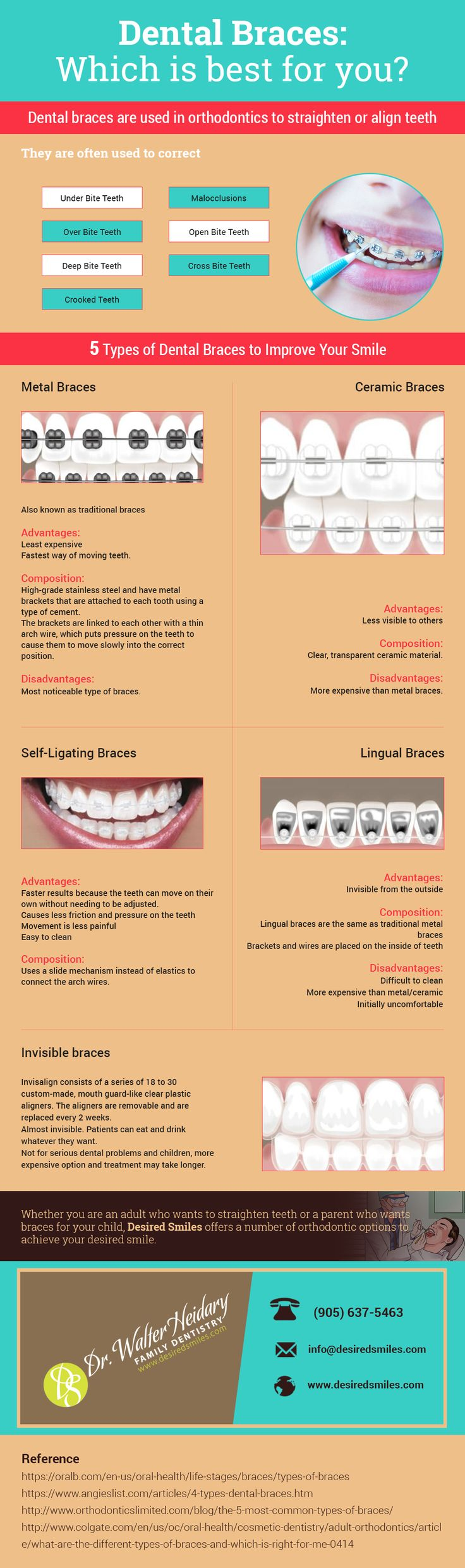 Dental Braces - Which One is Best for You.  Dental Braces are used in orthodontics to align teeth and correct over or under bite issues. Read this infographic to understand the various types of braces available and contact Desired Smiles for a free smile analysis, call 905-637-5463 today.