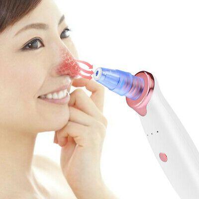1pc Blackhead Suction Machine 3 Modes Helpful Skin…