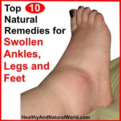 Top 10 Natural Remedies for Swollen Ankles, Legs and Feet: