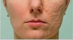 Ponte esto en cualquier cicatriz, arruga o mancha que tengas en la piel y observa cómo desaparecen en pocos minutos. #adelgazarbrazos