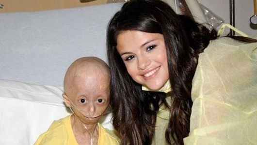 Progeria patient thanks Selena Gomez in stirring video.