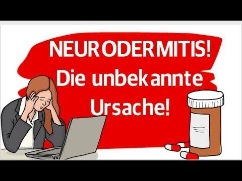 Neurodermitis Gesicht - 6 Tipps zur Behandlung - YouTube