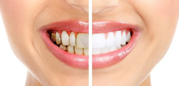 Smile Again! Try Teeth Whitening The Safe and Easy Way
