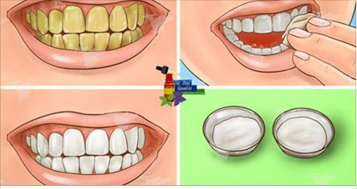 Com esta receita superfácil, você vai ter os dentes branquinhos como sempre sonhou.