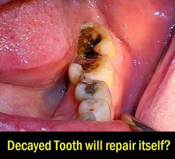 Decayed Tooth will repair itself | OVI Dental