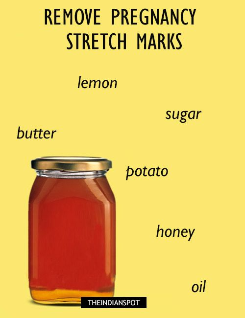 REMEDIES TO REMOVE PREGNANCY STRETCH MARKS