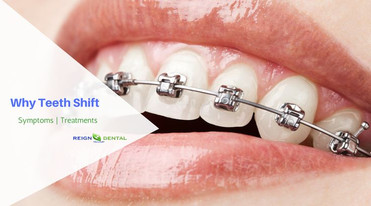 Why Are My Front Teeth Shifting | Teeth Shifting Symptoms & Treatment in Shoreline, Seattle, Milton, WA  Here are some of the reasons why teeth shift and some teeth shifting treatments that will stop your teeth from shifting: 1. Periodontal Disease and Structural Changes 2. Missing Teeth 3. Gaps 4. Overlapping Teeth 5. Grinding Teeth (Bruxism)  Visit Reign Dental to learn more about its symptoms and treatments.  #TeethShift #teethcare  #dental #dentalimplants #dentalhealth