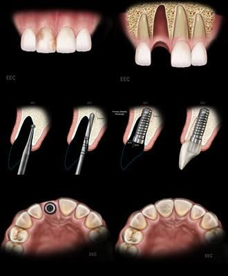 #Immediate #Loading #Implant by Precision Dental Care & Implant Center