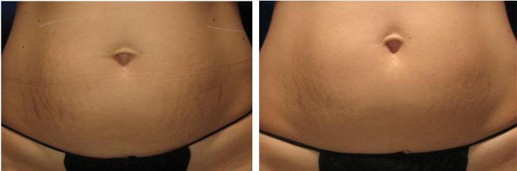 20 Best Images About Sublative Rf Laser Treatments On