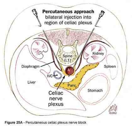 Celiac Plexus Block I get this about every six months