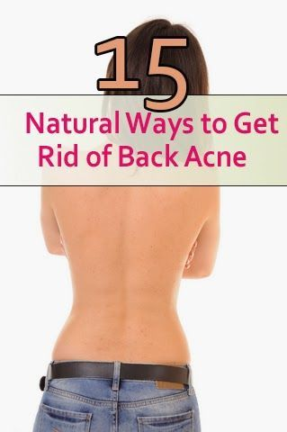 Skin Care And Health Tips: 15 Natural Ways to Get Rid of Back Acne