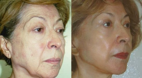 Face Restoration Workouts To Age-Regress Your Face Towards An All Non-Surgical Facelift