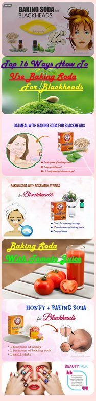 Baking Soda For Blackheads Removal – Does It Work? And How To Use?