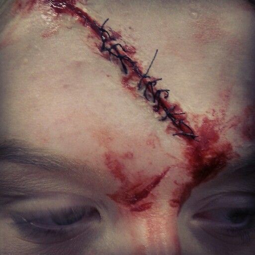 head wounds Forensic scientists have studied how to interpret gunshot wounds please be aware that this page contains graphic and unsettling photographs of gunshot wounds.