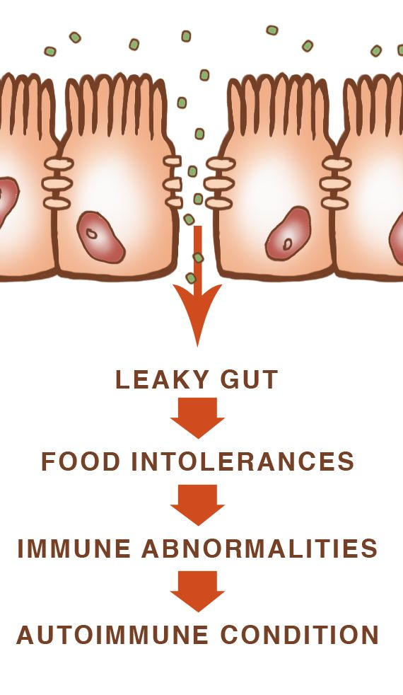 4 Steps to Heal Leaky Gut and Autoimmune Disease » DrAxe.com