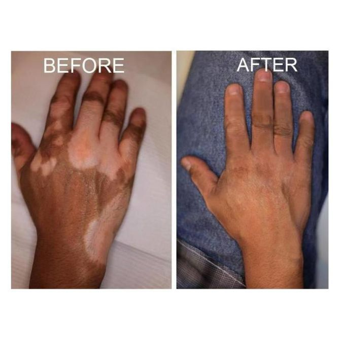 Clovate 0 5mg G Crema كلوفات كريمة In 2020 Vitiligo Treatment Vitiligo Cure Vitiligo