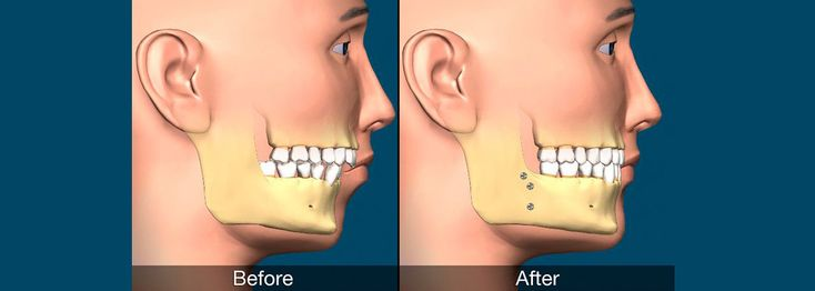Corrective Jaw Surgery Is Performed As A Solution To Jaw