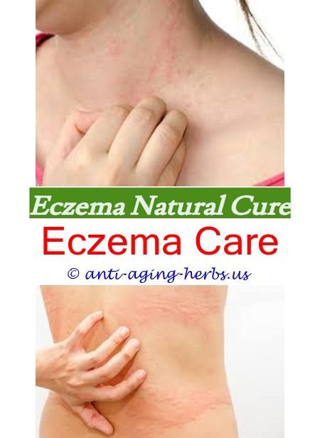 Aquaphor eczema reddit How to clear eczema on face What is