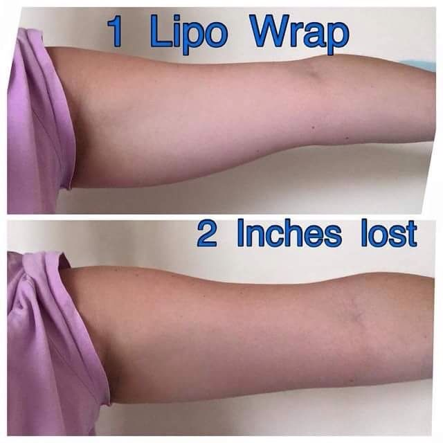 Our #wraps can be used all over the body: Legs;Tums;Boobs;Bums;Arms;Face So wherever your looking to lose inches, just wrap! One single kit is just £28 and that will give you up to 8 applications https://www.actiderm.co.uk/me/mel-wright/slimming-inch-loss/