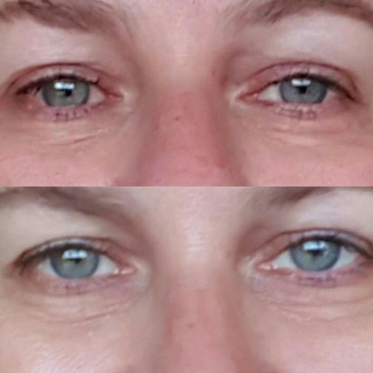 Do you suffer from red eyes due to side effect of Lumigen eye drops? Or any uneven skin tone? Then contact me as this cream really works.  #reduceredness #no1cream
