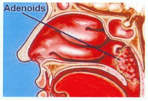 Adult Adenoids 53