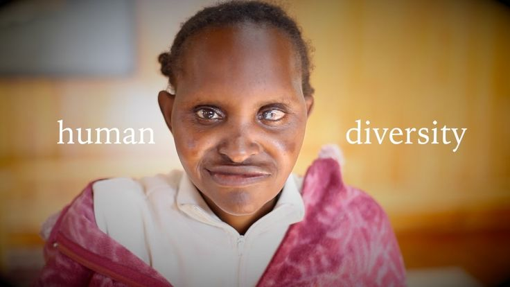 This new film from L'Arche Kenya: Stop Ableism, is simply amazing!