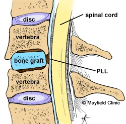 54 Best Cervical Fusion Images On Pinterest Spine