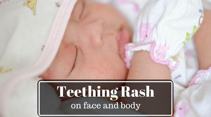 teething rash on face, body