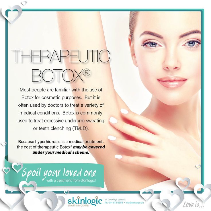 Therapeutic Botoxhttps://onlypult.com/sites/all/modules/custom/insta/lib/tinymce/js/tinymce/plugins/wp-emoji-one/icons/00AE.png Most people are familiar with the use of Botox for cosmetic purposes. But it is often used by doctors to treat a variety of medical conditions. Botox is commonly used to treat excessive underarm sweating or teeth clenching (TMJD). Because hyperhidrosis is a medical treatment, the cost of therapeutic…