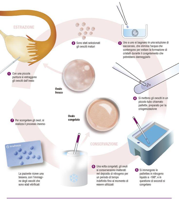 Vitrificazione di ovuli