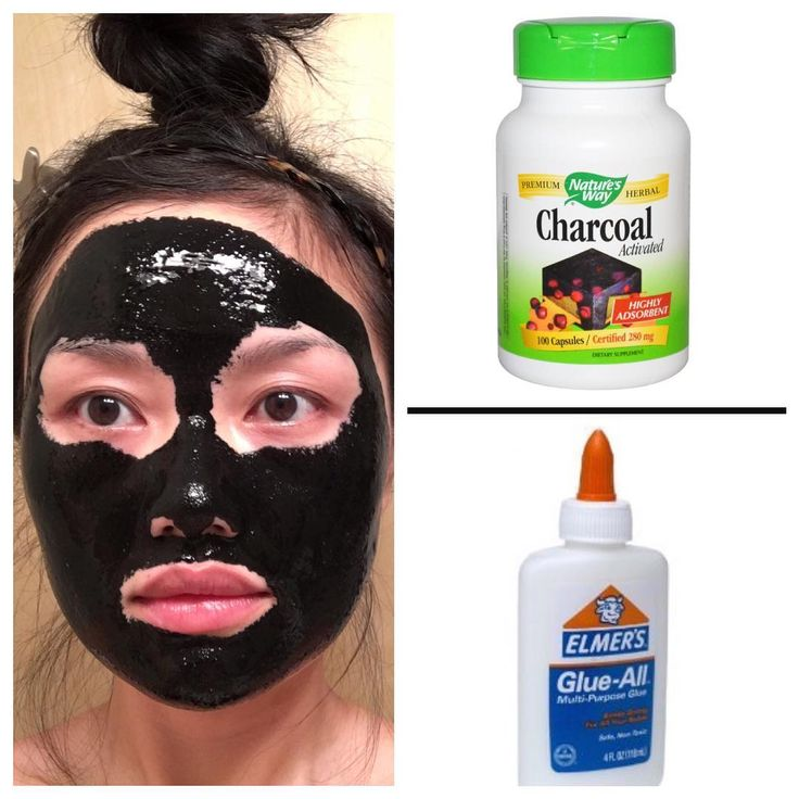 DIY Charcoal Mask: Open 4-5 capsules and use a brush to mix 1-2 spoonful of glue...