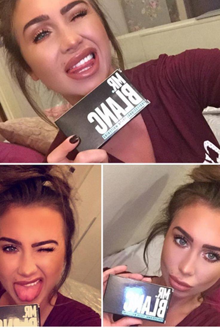 Mr Blanc: The teeth whitening kit behind Lauren Goodger's pearly whites...