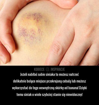 Jeżeli nabiłaś sobie siniaka to możesz natrzeć delikatnie bolące miejsce przekrojoną cebulą lub możesz wykorzystać do tego wewnętrzną skórkę od ...