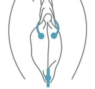 Your Guide To Clit Piercing (With Photos Of The 4 Best Options)