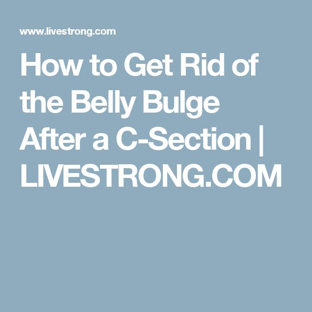 12 best post c section workout images on pinterest postnatal how to get rid of the belly bulge after a c section fandeluxe Image collections