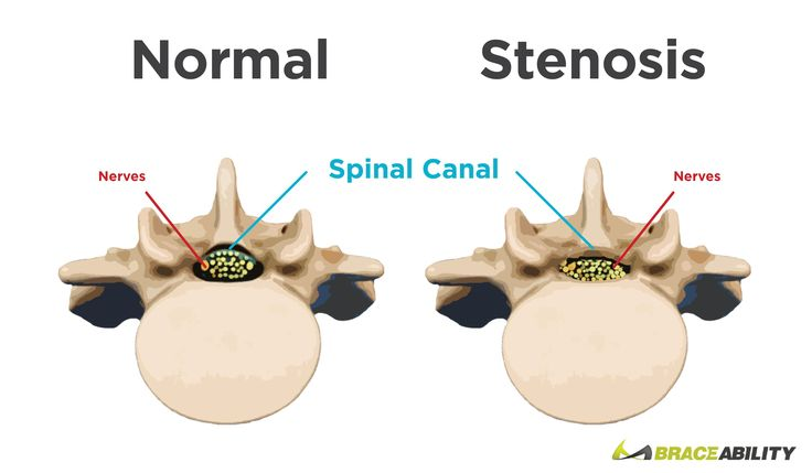 What is spinal stenosis? Spinal stenosis is the narrowing of the open spaces in your spine, leading to pressure on your spinal cord and the nerves that travel through it. This common back injury can occur in your lumbar, thoracic, & cervical region of your spine. Learn the different causes, symptoms, exercises, & treatment options for this condition. | BraceAbility #ChronicBackPainGoAway