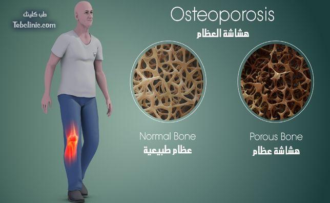 أسرع علاج لهشاشة العظام Osteoporosis Prevention Bone Diseases