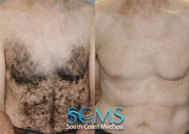 Actual SCMS Patient! Laser Hair Removal - Before and After - Male Chest