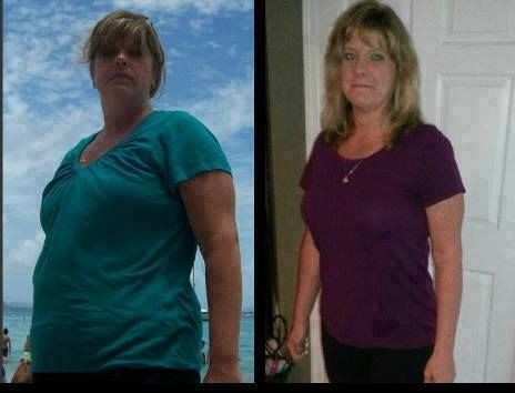 Weight loss surgery mistakes photo 6