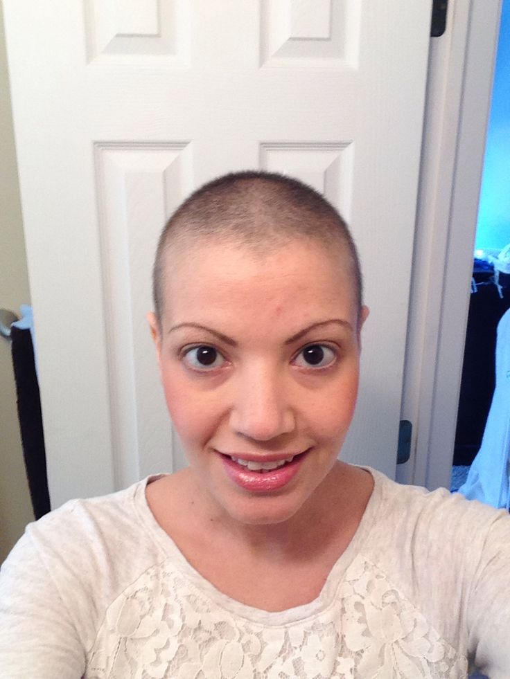Hair Three Months After Chemo   every day recorded 187
