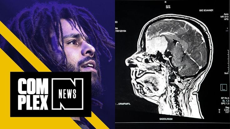 Researchers Are Exploring the Ways Hip-Hop Can Heal the Brain - https://www.mixtapes.tv/videos/researchers-are-exploring-the-ways-hip-hop-can-heal-the-brain/