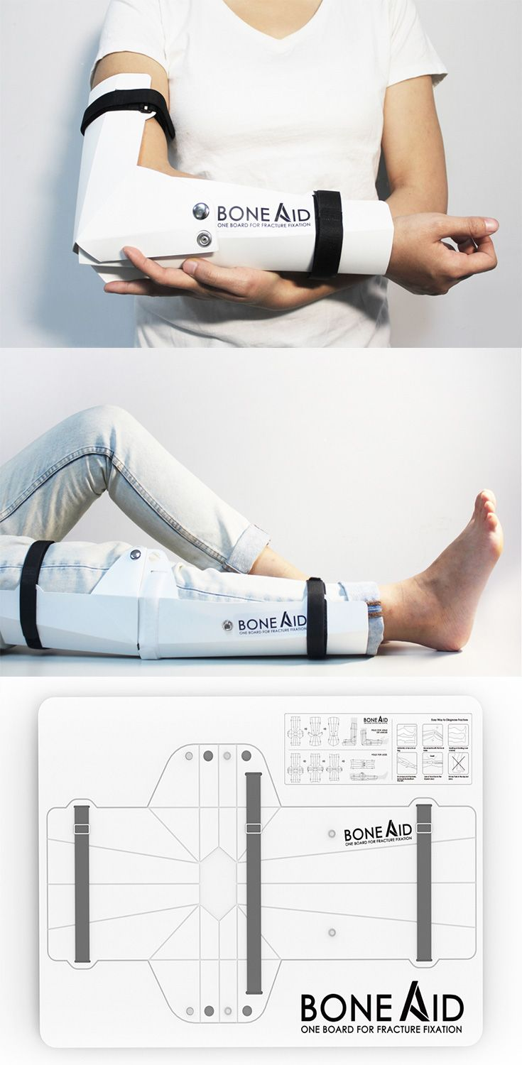 The 'Bone Aid' is a simple flat-packed board with a printed folding guide which allows it to be folded in three different ways, making it an effective cast for elbows, legs or ankles //