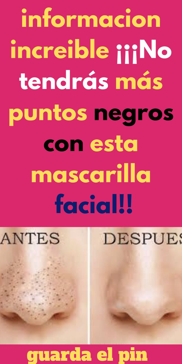Pin de Ive De Rodriguez en mascarilla Mascara facial