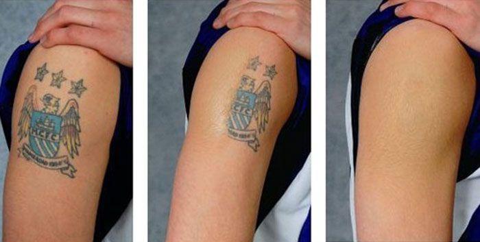 Error Diy Tattoo Permanent Tattoo Removal Cream Diy Tattoo