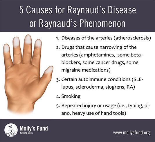 Molly's Fund • Raynaud's Disease or Raynaud's Phenomenon: Symptoms, causes, treatments, and preventing flare-ups